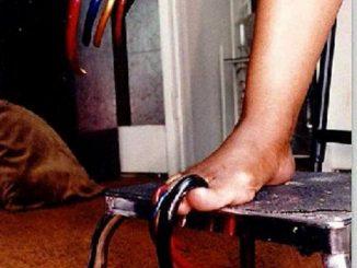 Louise Hollis hatte die längsten Fußnägel der Welt
